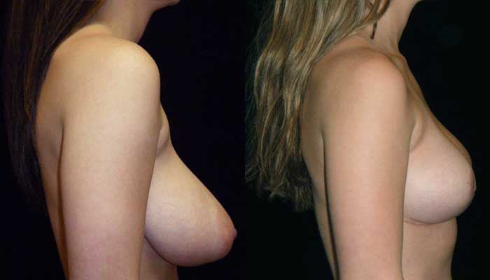 Breast Lift / Mastopexy Patient 4 Before & After