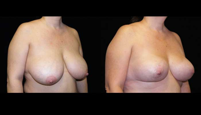 Breast Lift / Mastopexy Patient 5 Before & After