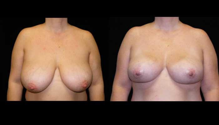 Breast Lift / Mastopexy Patient 6 Before & After