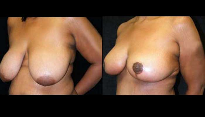 Breast Lift / Mastopexy Patient 08 Before & After
