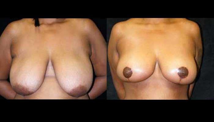 Breast Lift / Mastopexy Patient 09 Before & After