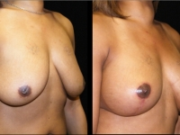 Breast Lift / Mastopexy Patient 18 Before & After
