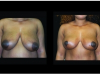 Breast Lift / Mastopexy Patient 32 Before & After