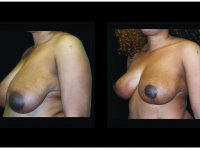 Breast Lift / Mastopexy Patient 33 Before & After