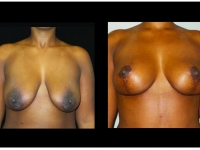 Breast Lift / Mastopexy Patient 37 Before & After