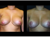 Breast Lift / Mastopexy Patient 29 Before & After
