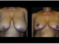 Breast Lift / Mastopexy Patient 35 Before & After