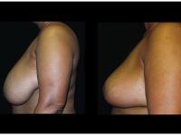 Breast Lift / Mastopexy Patient 36 Before & After