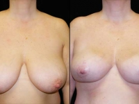Breast Lift / Mastopexy Patient 1 Before & After