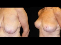 Breast Lift / Mastopexy Patient 11 Before & After
