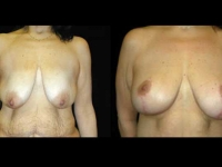 Breast Lift / Mastopexy Patient 14 Before & After