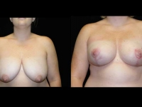 Breast Lift / Mastopexy Patient 15 Before & After