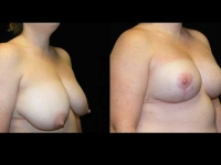 Breast Lift / Mastopexy Patient 16 Before & After