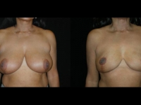 Breast Lift / Mastopexy Patient 20 Before & After