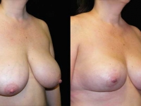 Breast Lift / Mastopexy Patient 2 Before & After