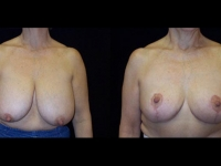 Breast Lift / Mastopexy Patient 23 Before & After