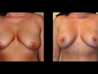 Breast Lift / Mastopexy Patient 27 Before & After