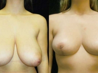 Breast Lift / Mastopexy Patient 03 Before & After