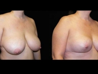 Breast Lift / Mastopexy Patient 05 Before & After