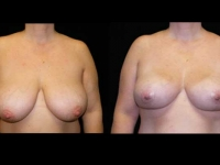 Breast Lift / Mastopexy Patient 06 Before & After