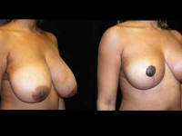 Breast Lift / Mastopexy Patient 7 Before & After