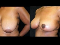 Breast Lift / Mastopexy Patient 8 Before & After