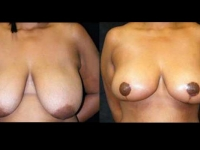 Breast Lift / Mastopexy Patient 9 Before & After
