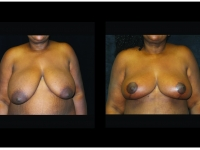 Breast Lift / Mastopexy Patient 34 Before & After