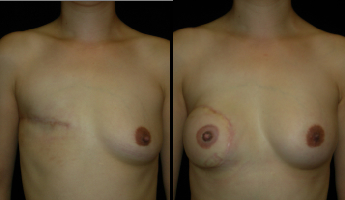 Breast Reconstruction Patient 10 Before & After