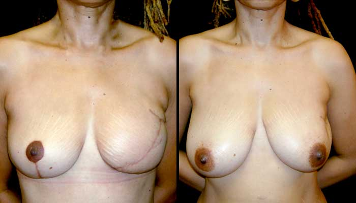 Breast Reconstruction Patient 2 Before & After