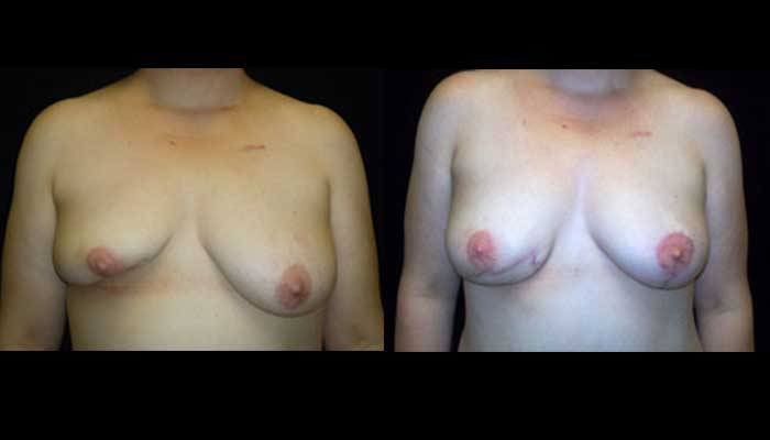Breast Reconstruction Patient 3 Before & After