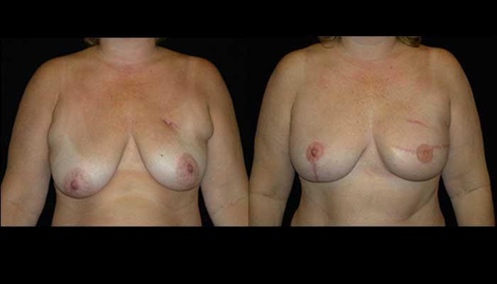 Breast Reconstruction Patient 4 Before & After