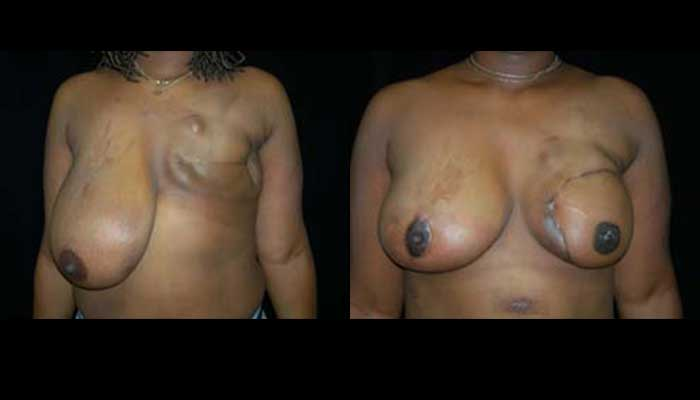 Breast Reconstruction Patient 6 Before & After