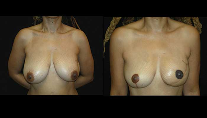 Breast Reconstruction Patient 8 Before & After