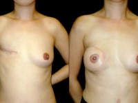 Breast Reconstruction Patient 1 Before & After