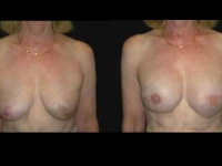 Breast Reconstruction Patient 5 Before & After