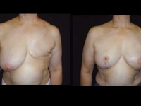 Breast Reconstruction Patient 7 Before & After