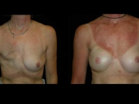 Breast Reconstruction Patient 9 Before & After
