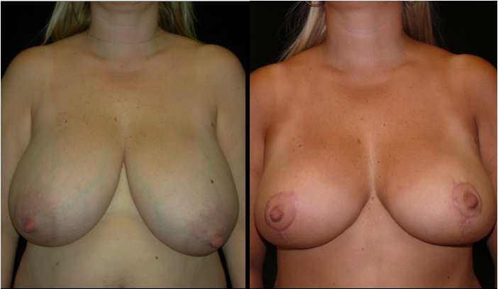 Breast Reduction Patient 4 Before & After