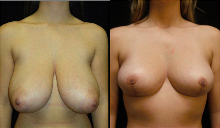 Breast Reduction Patient 6 Before & After