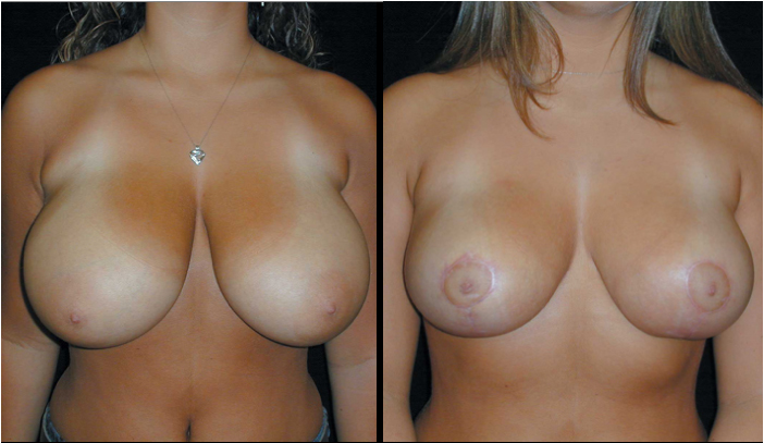 Breast Reduction Patient 7 Before & After