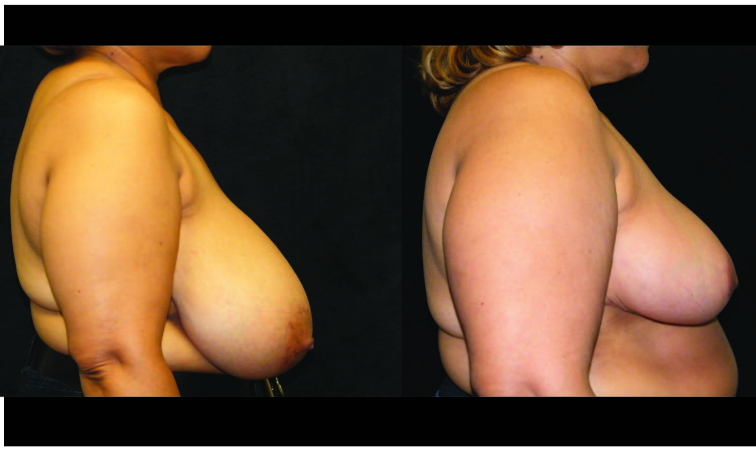 Breast Reduction Patient 2 Before & After