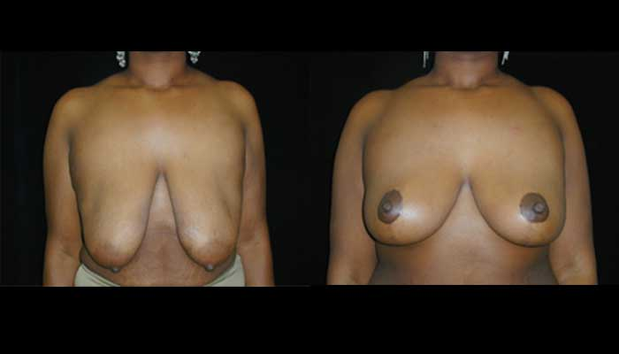 Breast Reduction Patient 17 Before & After
