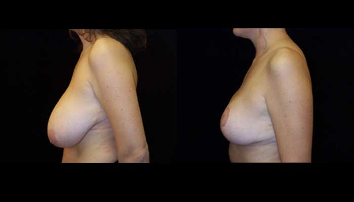 Breast Reduction Patient 18 Before & After