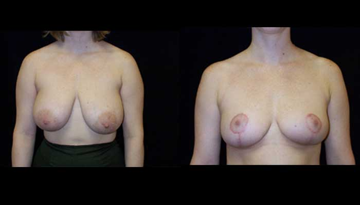 Breast Reduction Patient 20 Before & After