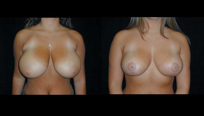 Breast Reduction Patient 21 Before & After