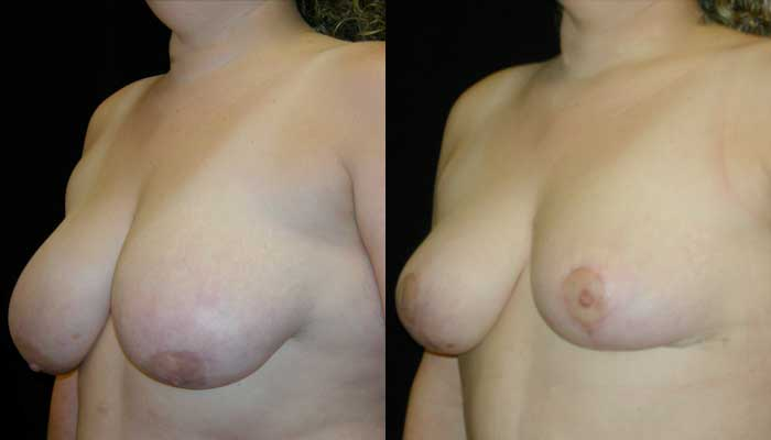 Breast Reduction Patient 23 Before & After