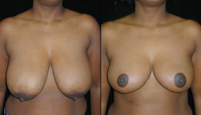 Breast Reduction Patient 10 Before & After