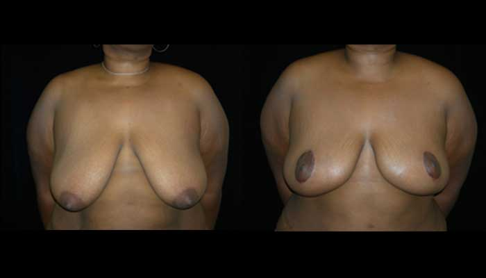Breast Reduction Patient 12 Before & After