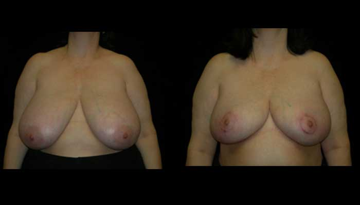 Breast Reduction Patient 13 Before & After